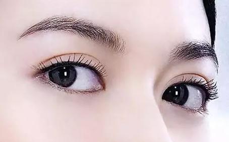 眼袋纹 消除方法有那些
