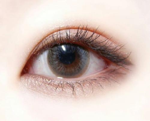 割双眼皮修复 应该注意些什么