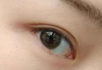 <font color=red>做双眼皮手术</font>哪里好 海南省人民医院整形科怎么样
