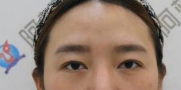 北京军区总医院整形科做了切开法双眼皮 眼睛特别好看啦