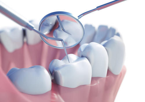 纯钛烤瓷牙 让你的牙齿更加整齐