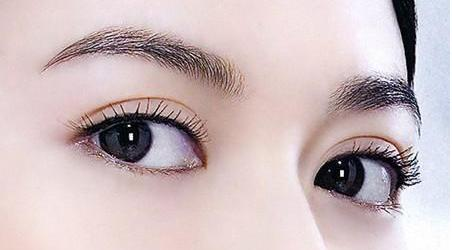 双眼皮整形手术 让你拥有迷人大眼睛
