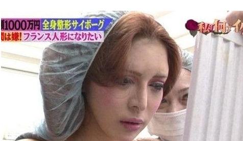 日本女子整容之旅 轮廓完全整容成法国妞