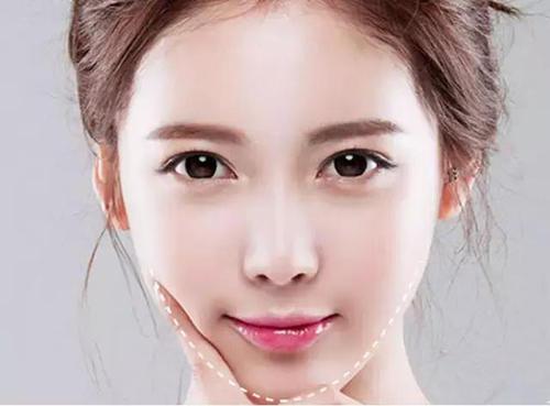下额角磨骨 塑造属于你的脸型
