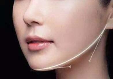 打造小V脸告别国字脸 下颌角磨骨解决你的烦恼