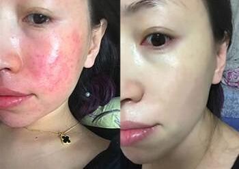 大同第三人民医院整形科光子嫩肤治疗红血丝 摆脱敏感肌