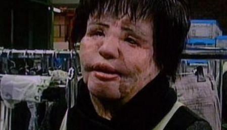 韩国女子整形成瘾 面部注射食用油结果造成毁容