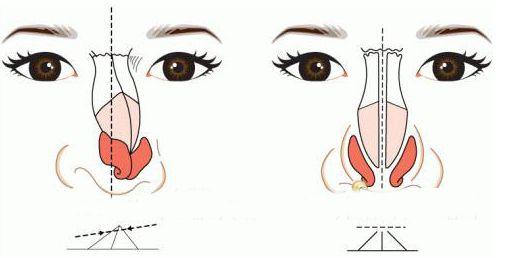 鞍山第三医院美容整形外科歪鼻整容 修复你的面容