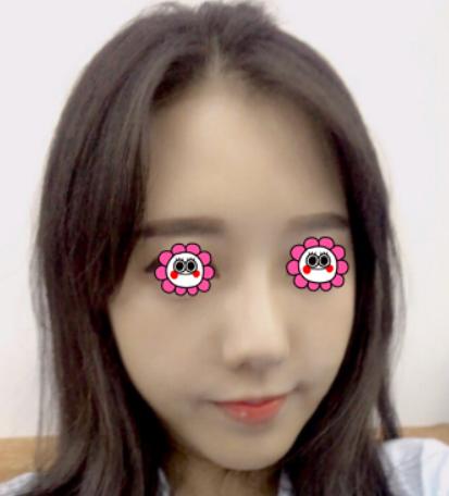 我在浙江中医院整形科做了面部吸脂 朋友都羡慕我的巴掌脸