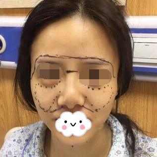 黄石第四人民医院医疗整形科做面部吸脂 真是给力我大惊喜