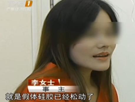 广州李女士做隆鼻手术失败 硅胶假体松动晃动