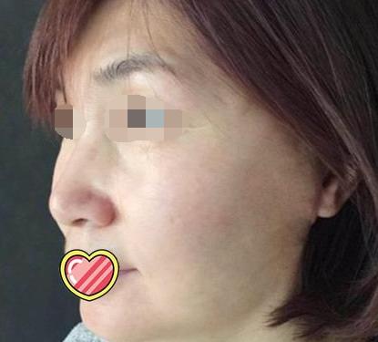 安庆红十字博爱医院医疗整形科做手术面部提升 隐藏了年龄