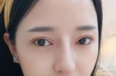 河北友爱医院医疗整形科做双眼皮和鼻综合 效果我很满意