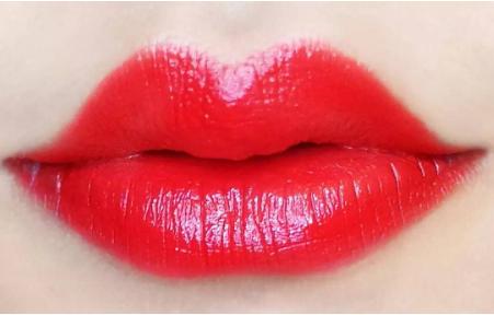 注射丰唇的最佳选择 自体脂肪丰唇对比sg丰唇