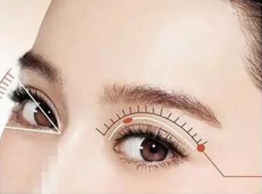 临?#39318;?#38889;式双眼皮医院排名 临沂沂水中心医院整形科怎么样