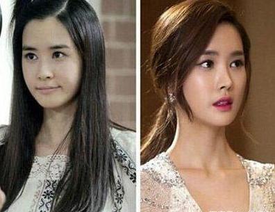 韩国整容失败的女明星 李多海 金南珠 孙娜恩 你觉得谁最可
