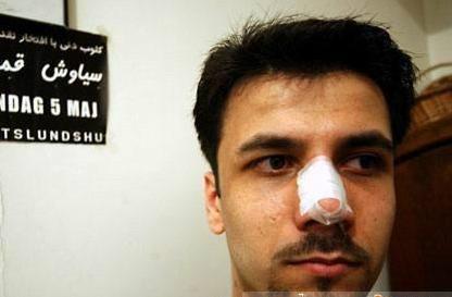 伊朗人做鼻部整形成为热潮 外表的美丽越来?#34903;?#35201;