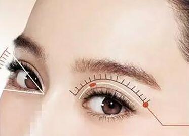 杭州割双眼皮医院排名 杭州师范大学附属医院整形科好不好