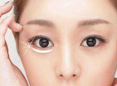 眼睛整形医院排名 ?#36718;?#31532;三人民医院整形科去眼袋优势