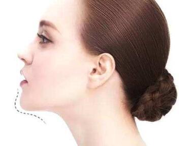 隆下巴的几种方法  挺翘下巴简简单单就能拥有