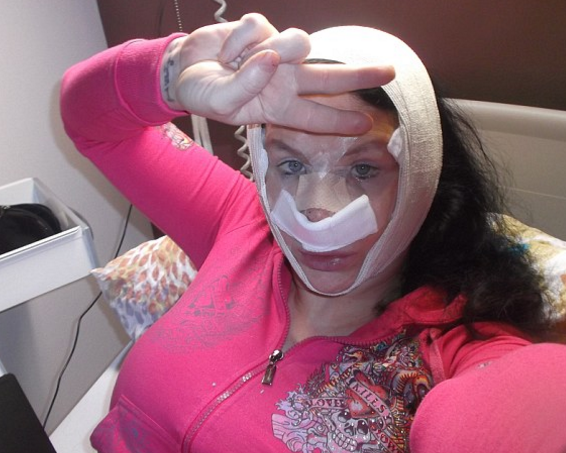 Frankendoll痴迷整容 经历了6次隆胸手术