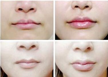 完美唇型怎么拥有  爱贝芙丰唇效果完美