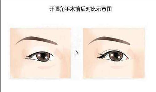 开眼角手术有什么副作用  放大眼部魅力