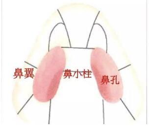 鼻头肥大整形?#36136;?#25104;功的关键  鼻翼缩小轻松拥有小巧翘鼻