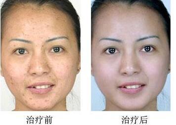 皮肤磨削祛疤效果好吗  削除疤痕做个完美的人