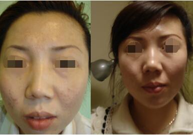 """祛疤的方法有哪些  """"重塑""""无瑕肌肤"""