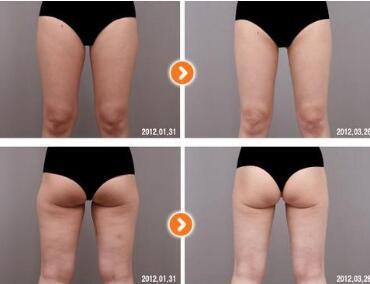 臀部吸脂是否要保留一定的脂肪层  塑造你的S型曲线