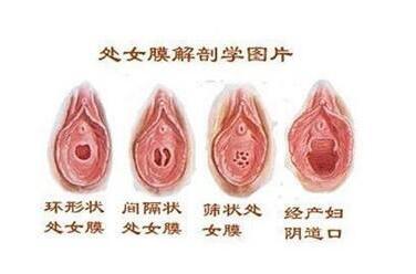 佛山第二人民医院医疗美容整形科处女膜修复有后遗症吗