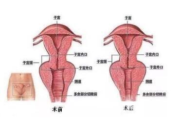 佛山顺德中医院医疗整形科阴道紧缩术让你产后也性福
