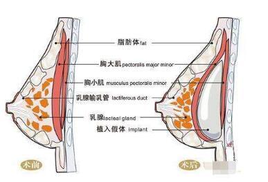 如何判断隆胸是否成功  隆胸修复的优点有哪些