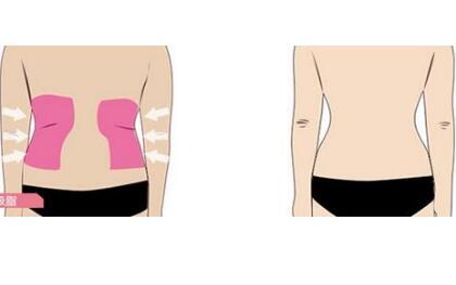腰腹吸脂的过程  告别水桶腰拥有小蛮腰