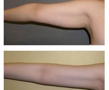 """手臂吸脂的效果能维持多久  轻松享""""瘦""""加倍美丽"""