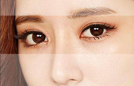 揭晓双眼皮常见手术方法 选一种适合你的