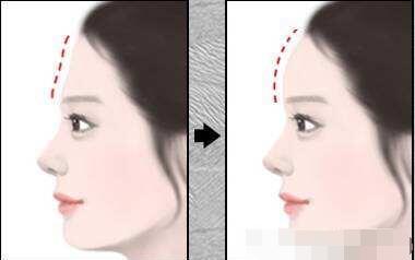 胶原蛋白有哪些功效  隐藏岁月在你脸上留下的痕迹
