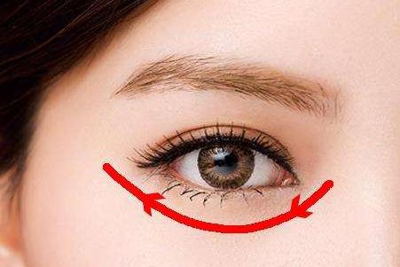小眼睛的福音 开眼角和双眼皮手术能一起做吗