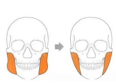 磨骨整形手术疼痛明显吗  术后该怎么护理呢