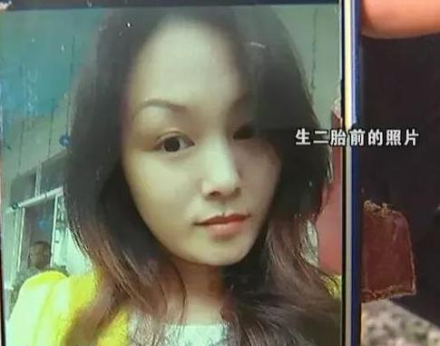 """宁波胡女士离婚后借钱做了眼综合和?#20146;?#21512; 被""""毁容"""""""