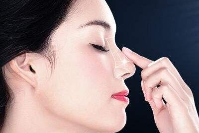 与sg并驾齐驱的隆鼻方法 伊维兰注射隆鼻的费用是多少