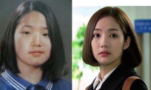 普通人整形VS韩国明星整容对比图 有哪些区别之处