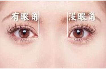 """开眼角手术多久可以恢复正常  完美放大你的""""电眼"""""""