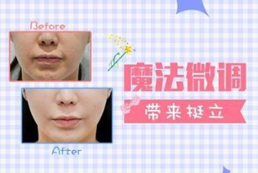 做注射隆鼻术后效果自然吗  哪种材料隆鼻适合你