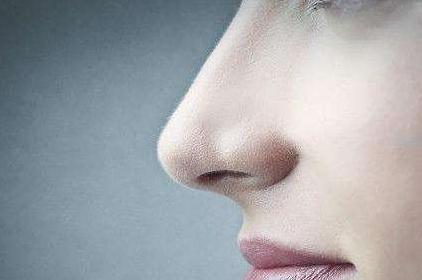先来看一下鼻翼缩小的?#36136;?#26041;案 鼻翼缩小术的优点有哪些