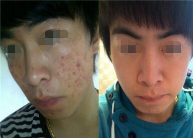 难看的痘痘是怎么形成的  彩光嫩肤祛痘效果好不好