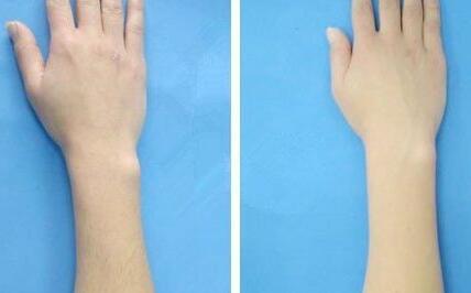 激光手臂脱毛有哪些优势  还你洁白双臂