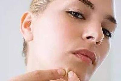 让脸上的青春痘消失 激光祛痘的优势有哪些