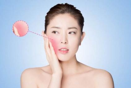 不要大红脸 光子嫩肤去红血丝的机理是什么